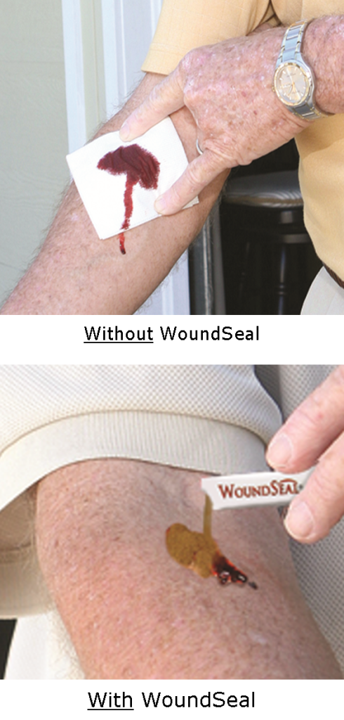 With Without WoundSeal